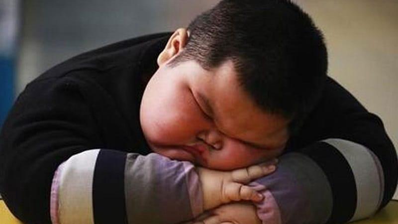 چاقی مفرط در کودکان