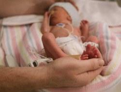نوزاد نارس چه علائمی دارد و چگونه باید از آن مراقبت کرد؟