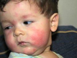 آلرژی غذایی در کودکان چیست و چه نشانه هایی دارد؟ – بخش اول