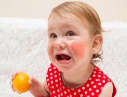 آلرژی غذایی کودکان چیست و چه نشانه هایی دارد؟ – بخش دوم
